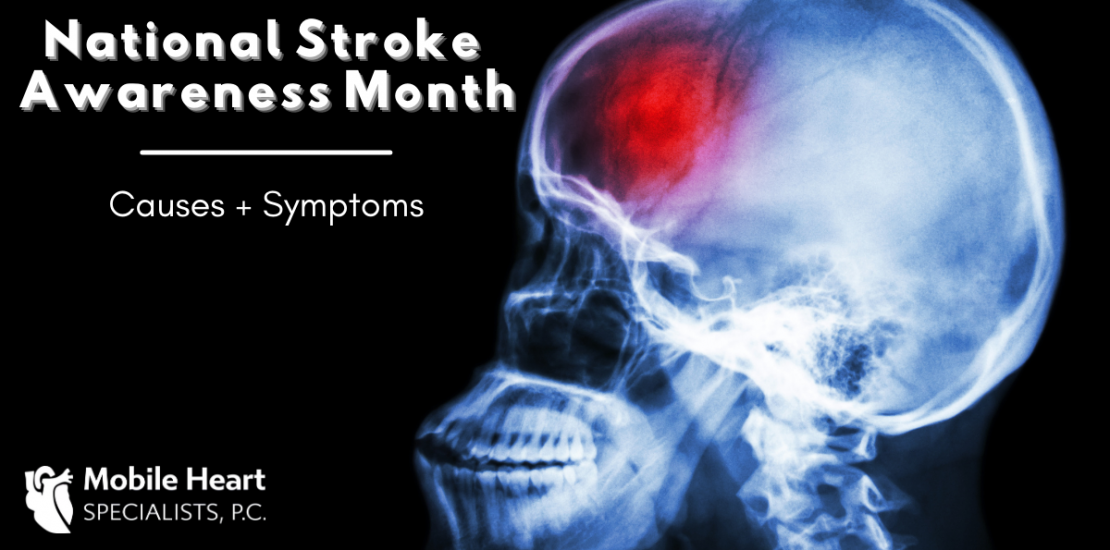 Causes and symptoms of strokes